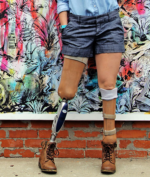 Knit-Rite prosthetic sock